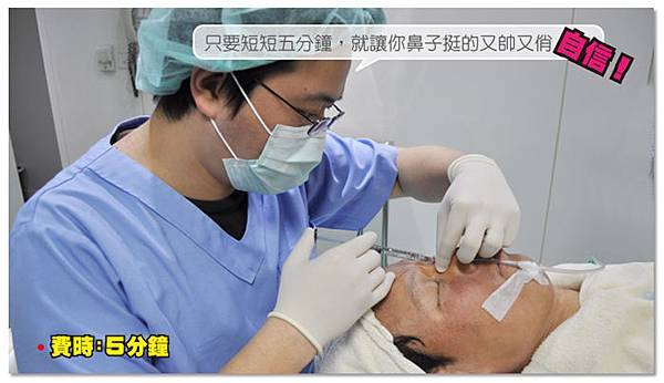 台中玻尿酸|台中玻尿酸隆鼻05