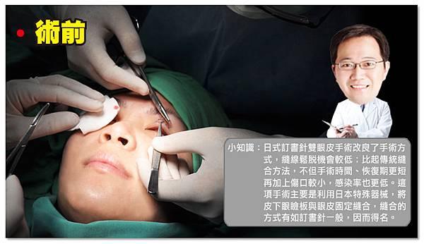 台中雙眼皮|台中日式雙眼皮10