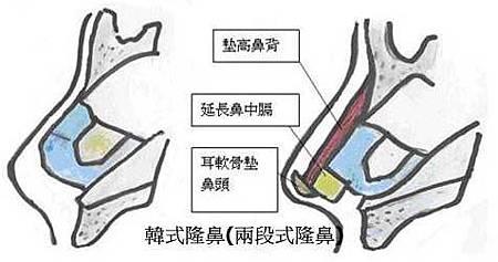 rhinoplasty-29.jpg