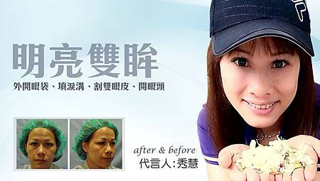 台中眼袋手術|眼袋手術權威|台中菲仕美