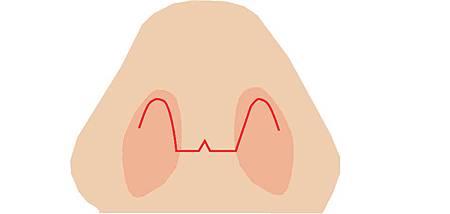 台中隆鼻方式|台中隆鼻推薦權威|菲仕美