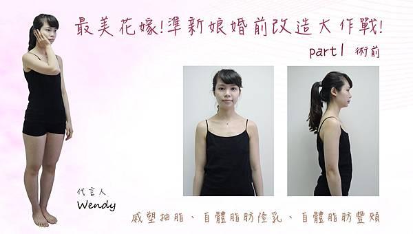 台中自體脂肪隆乳手術|台中抽脂補胸權威|菲仕美