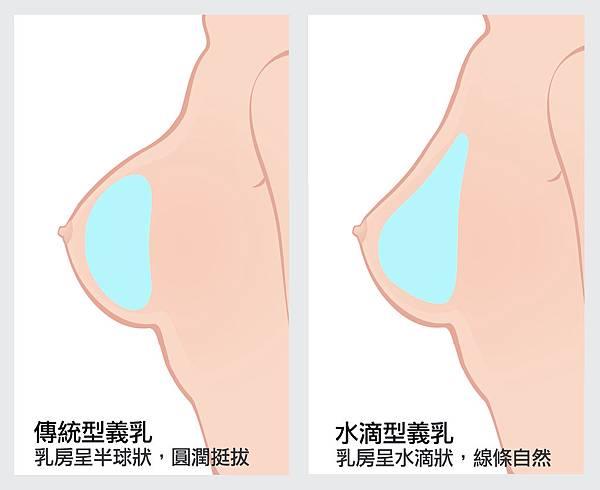 傳統型VS水滴型
