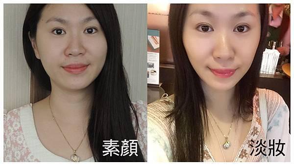 台中隆鼻整形推薦|卡麥拉兩段式隆鼻|菲仕美診所