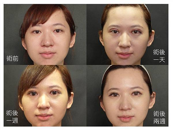 台中雙眼皮|台中縫雙眼皮推薦 | 台中菲仕美診所