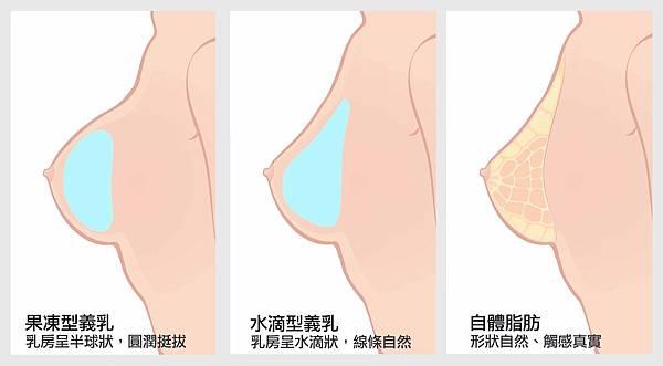 各種隆乳.jpg
