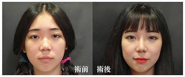 台中韓式隆鼻|三段式隆鼻|台中菲仕美