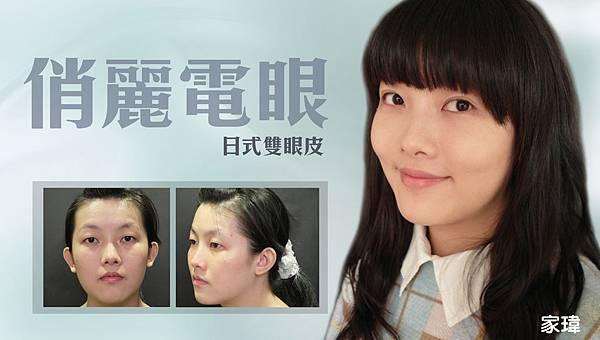 台中縫雙眼皮診所|台中雙眼皮|菲仕美診所