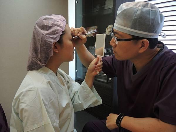 縫雙眼皮做記號台中雙眼皮手術、歐系混血瞳雙眼皮、台中雙眼皮整形、台中縫雙眼皮、台中割雙眼皮、內雙眼皮、台中韓式雙眼皮、台中日式訂書針雙眼皮、台中八字縫雙眼皮、台中開眼頭、開眼尾、台中大小眼調整、台中提眼瞼肌手術、台中雙眼皮手術價格費用、台中菲仕美診所縫雙眼皮費用、台中雙眼皮整形外科醫生醫師推薦、台中雙眼皮手術權威名醫