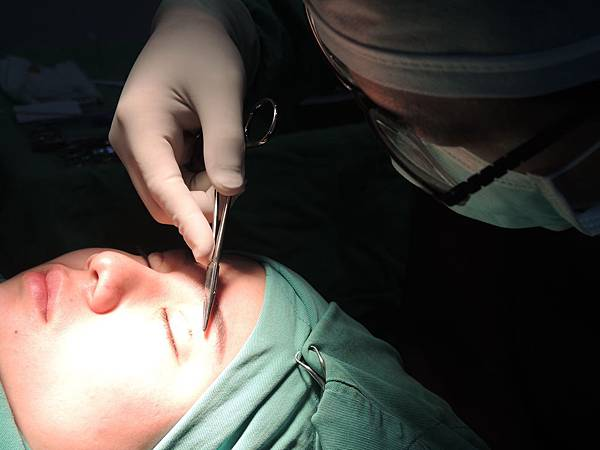 台中雙眼皮手術、歐系混血瞳雙眼皮、台中雙眼皮整形、台中縫雙眼皮、台中割雙眼皮、內雙眼皮、台中韓式雙眼皮、台中日式訂書針雙眼皮、台中八字縫雙眼皮、台中開眼頭、開眼尾、台中大小眼調整、台中提眼瞼肌手術、台中雙眼皮手術價格費用、台中菲仕美診所縫雙眼皮費用、台中雙眼皮整形外科醫生醫師推薦、台中雙眼皮手術權威名醫