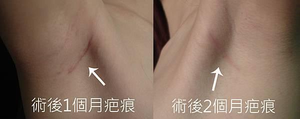 台中水滴隆乳|台中隆乳權威|菲仕美
