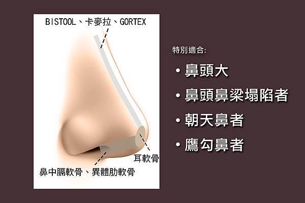 台中隆鼻權威|台中隆鼻|台中菲仕美楊學穎
