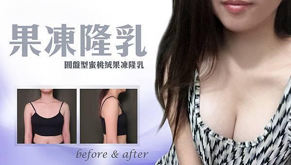 台中果凍隆乳|整形外科隆乳女醫師|菲仕美朱純慧醫師