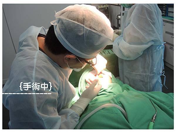 手術1編輯-網頁用.jpg