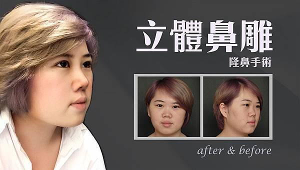 台中三段式隆鼻|台中隆鼻|菲仕美診所