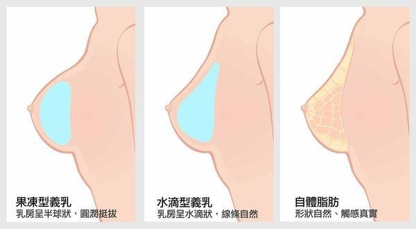 隆乳按摩02.jpg