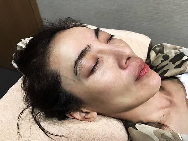 台中洢蓮絲推薦-逆天美魔女 凍齡奇蹟術-菲仕美診所