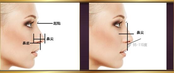 台中隆鼻、台中隆鼻推薦、台中隆鼻手術