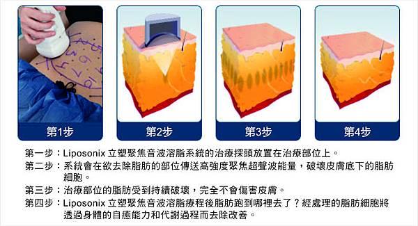 liposonix立塑聚焦音波溶脂價錢
