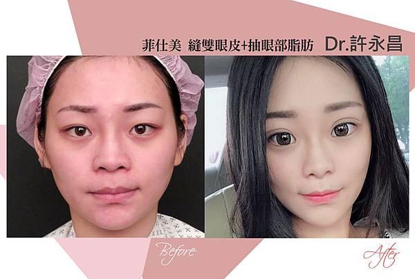 台中雙眼皮手術|台中縫雙眼皮權威|台中菲仕美