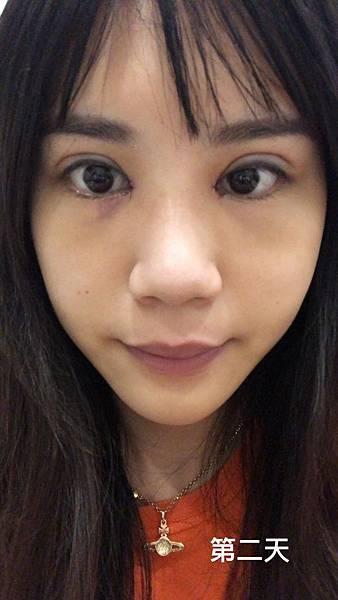 台中縫雙眼皮|台中縫雙眼皮推薦台中菲仕美楊學穎醫師