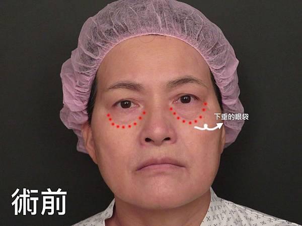 台中眼袋外科│台中眼袋推薦│眼袋手術填補淚溝│菲仕美整形外科診所