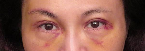 台中眼袋外開,台中眼袋推薦,眼袋手術填補淚溝,菲仕美整形外科診所