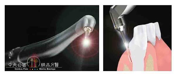 低疼痛雷射牙周治療