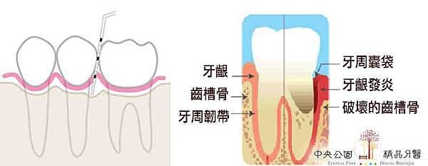 0牙周囊袋的測量與意義