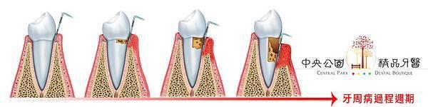 牙周病形成流程