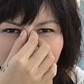 蚊子臉.JPG