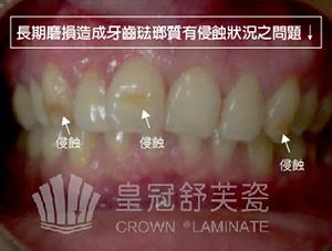牙齒琺瑯質侵蝕狀況問題-1-01