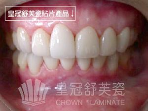 牙齒琺瑯質侵蝕狀況問題-1-01-01
