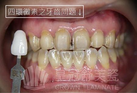 四環黴素牙-2-01
