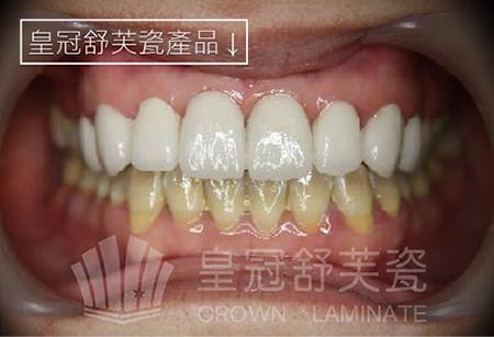 四環黴素牙-01