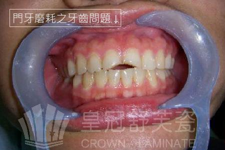門牙磨耗1-01