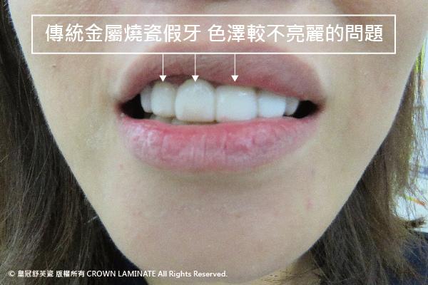 美齒小故事-傳統燒瓷假牙的問題-01