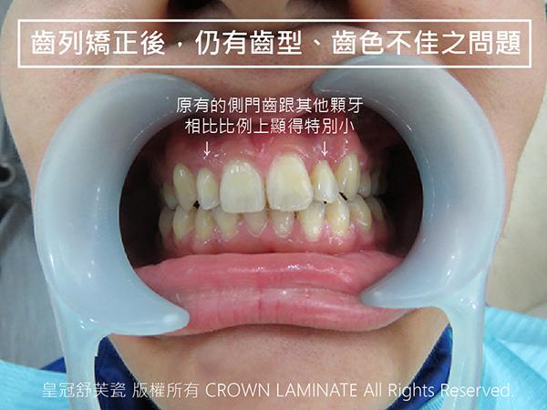 齒型不佳案例-01