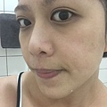 臉頰以及鼻頭跟鼻翼兩側開始微微泛紅、有點癢