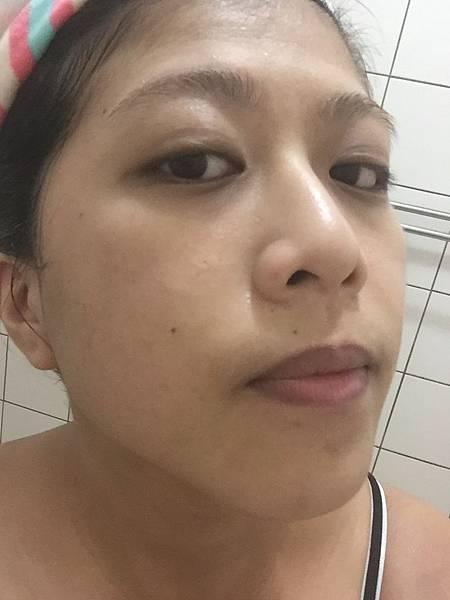 我準備開始洗頭的時候發現臉上開始有刺痛感