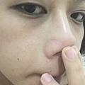 右邊鼻翼明顯刺痛