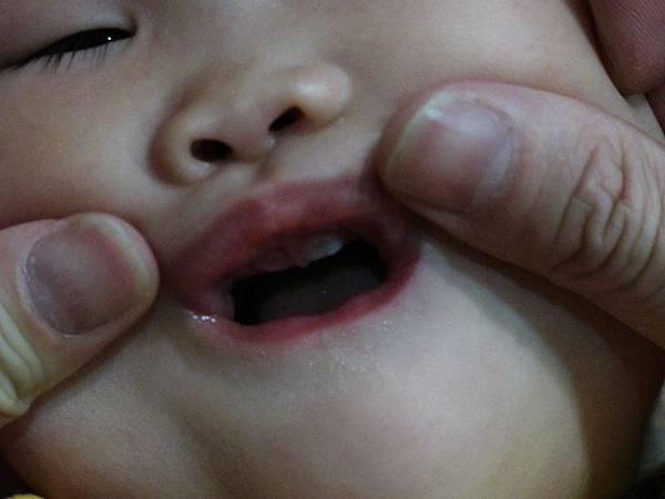 【13M4D】上排冒出四顆牙.JPG