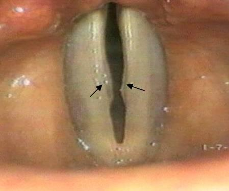 vocal nodule.jpg
