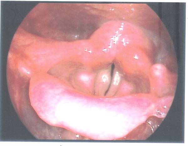 vocal cyst.jpg