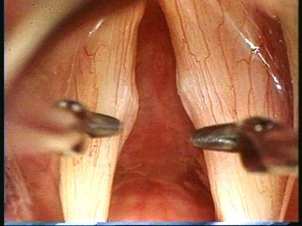 vocal nodule 1.JPG
