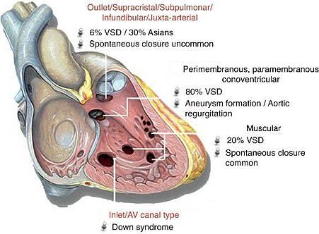 VSD classification