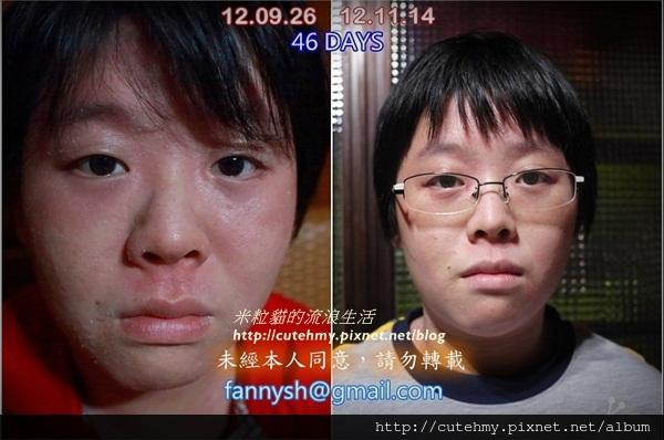 46DAY-臉1-crop