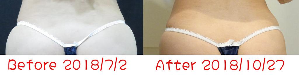 光澤醫美減肥減脂三重奏 (27)