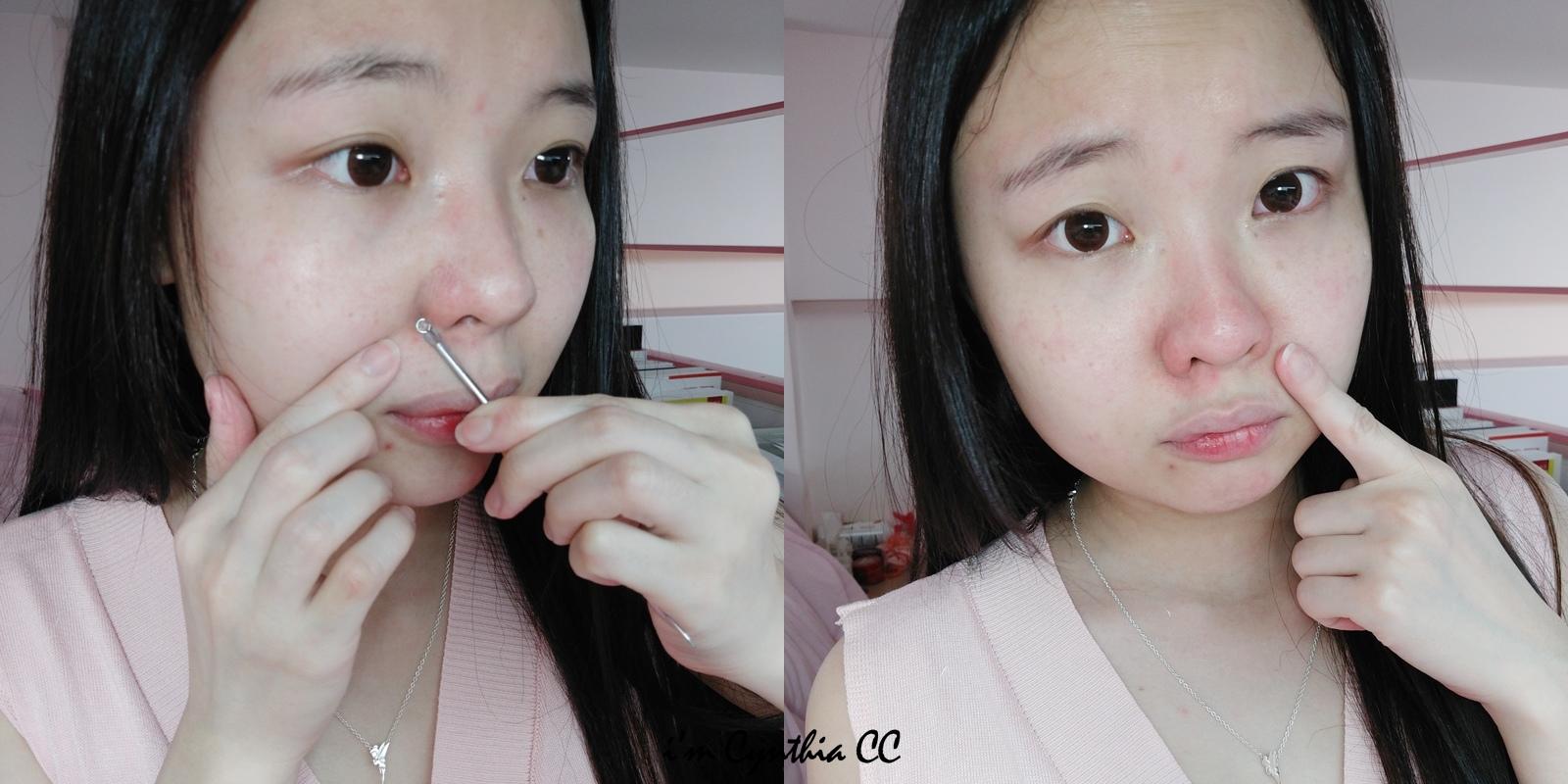 BeautyWishMask-粉刺後修護面膜