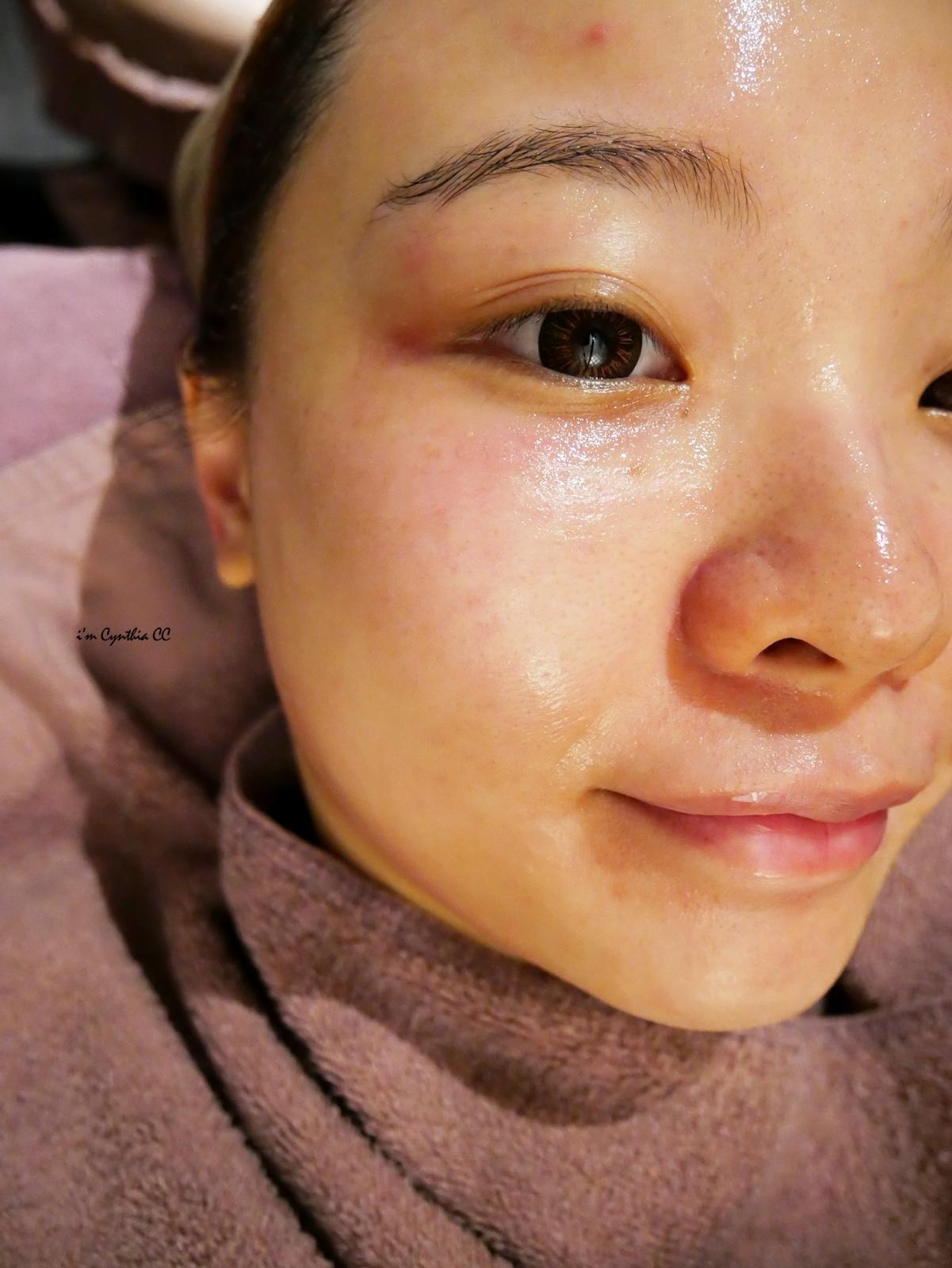 女人234非侵入美容療無針玻尿酸